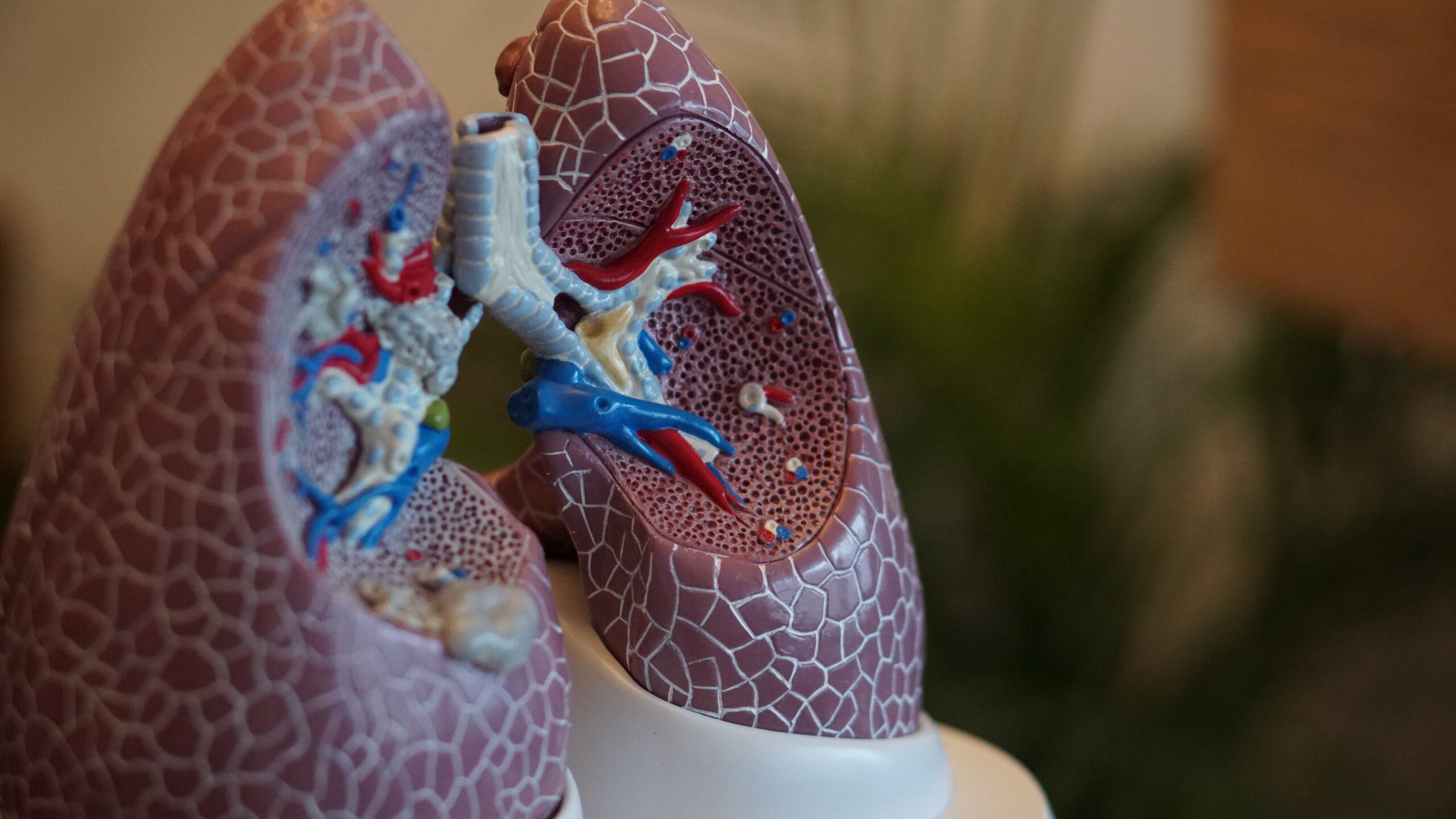 Czy olej z marihuany mógł spowodować zmniejszenie guza raka płuc?